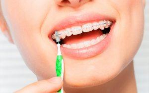 Limpieza con ortodoncia brackets