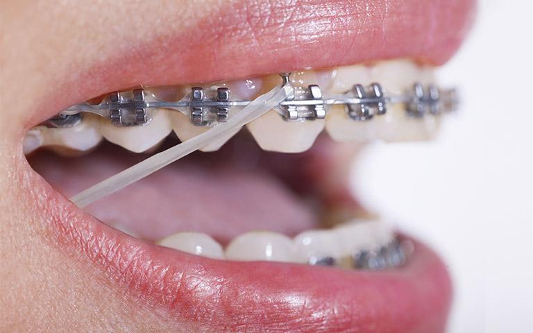 Goma intermaxilar de ortodoncia