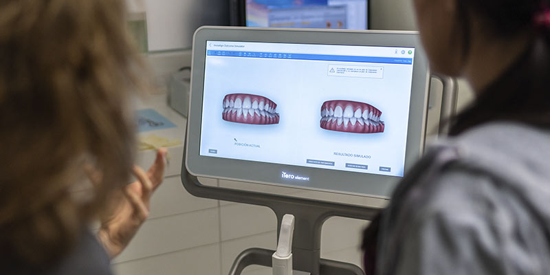 Incorporación del escáner intraoral iTero Elements y del escáner 3D Sirona