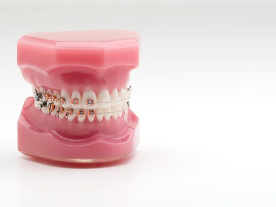 Tipos ortodoncia